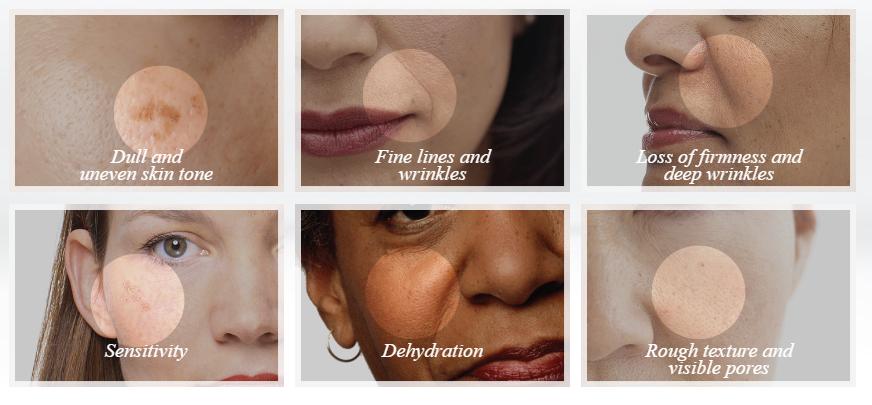 Skin Advisor Skin Concerns